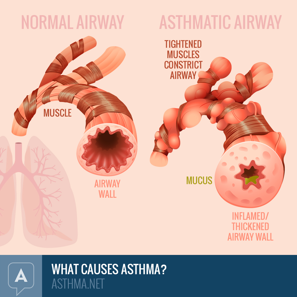 Normal airways next to airways affected by asthma