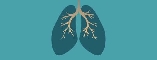 Asthma Subgroups: Eosinophilic Granulomatosis with Polyangiitis image