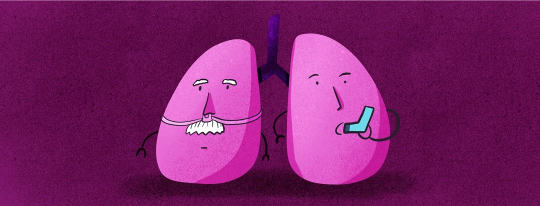 one side of lungs has an oxygen tube and the other is using an inhaler