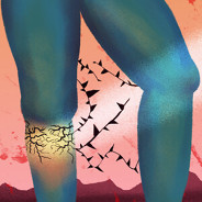 What Are the Symptoms of Deep Vein Thrombosis? image