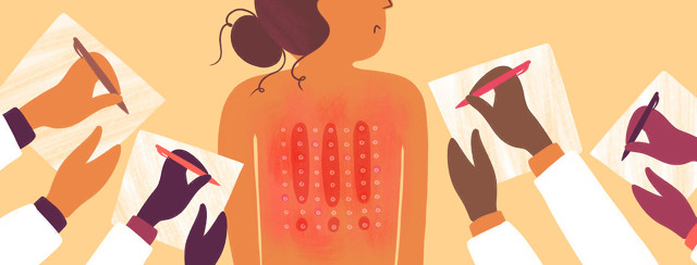 a woman getting an allergy pin prick test on her back, with many doctor's hands taking notes around her.